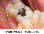 Macro of a tooth with amalgam filling - stock photo