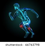 3D Skeleton Running, Knee Pain - stock photo