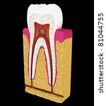 Dentistry: Tooth cut or section isolated over black background - stock photo
