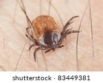 Tick feeding on human, extreme close up with high magnification, focus on tick head - stock photo